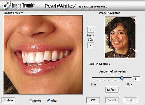 PearlyWhites Plug-In
